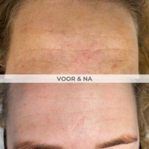voor na resurfx huidverbetering